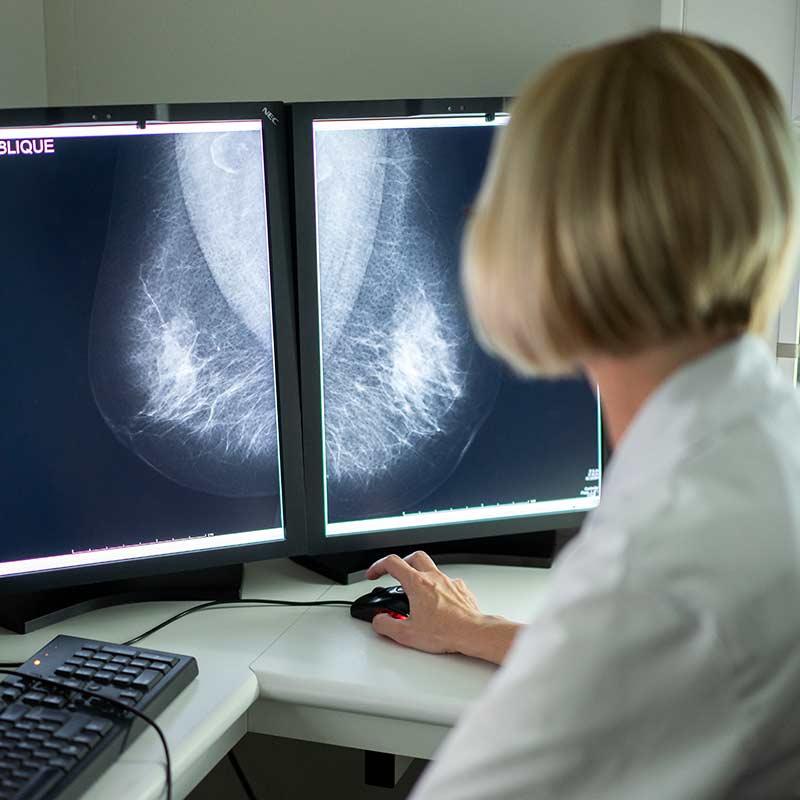 Centre de radiologie région centre Tours, Orléans